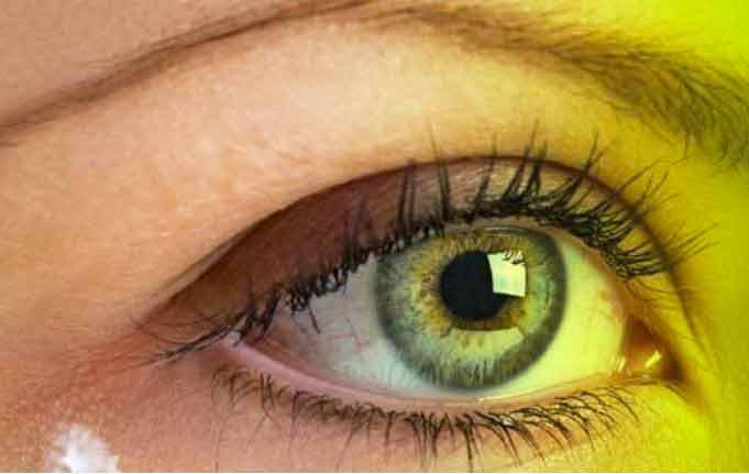 Caratteristiche di Eye Lift