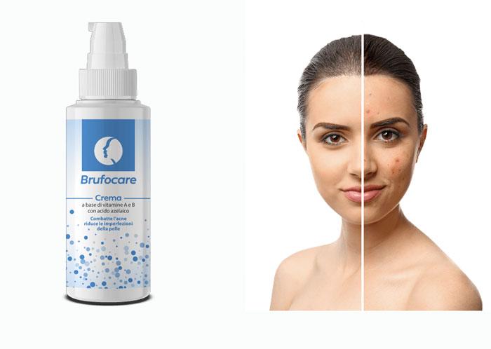 Brufocare funziona contro acne e brufoli? Recensione, opinioni e il prezzo